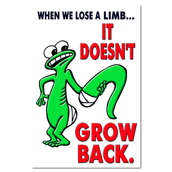 AI-sp129 - When we lose a lim it doesn't grow back Safety Poster